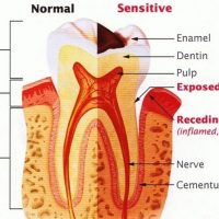 understanding-tooth-sensitivity_illustration-min